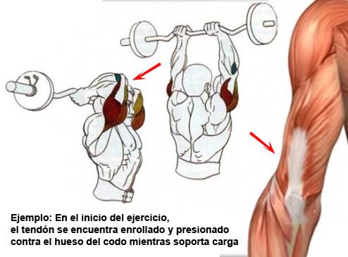 compresion-tendinitis