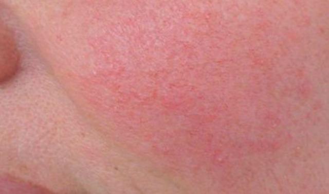 vari tipi di pelle