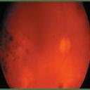Vitreous hemorrhage intraocular