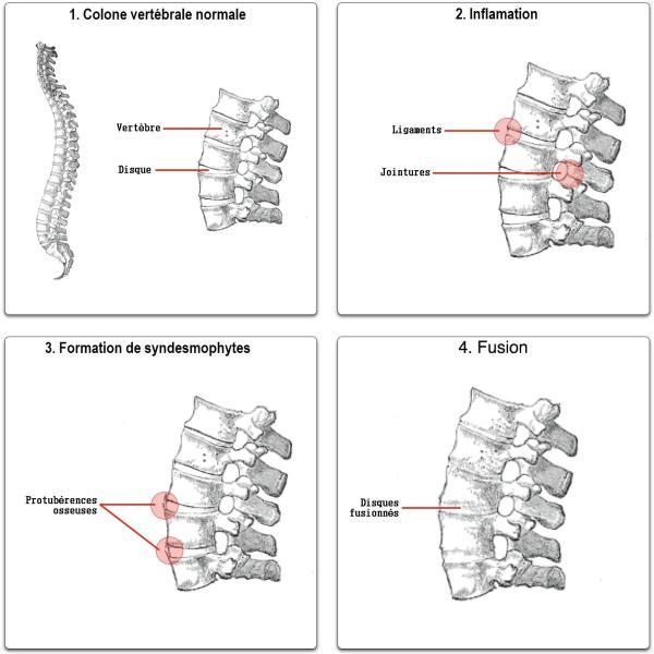 Evolution ankylosing spondylitis