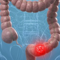 Antigène carcino-embryonnaire (ACE)