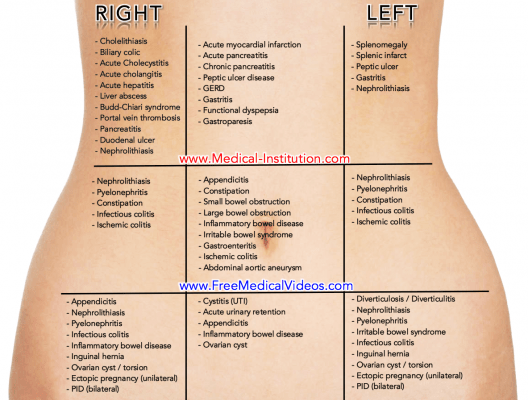 Abdominal Pain Differential Diagnosis Medical Institution
