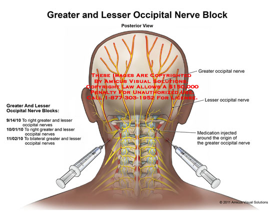 image of Botox Injections For Migraines Cpt Code 2
