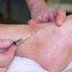 Sclérothérapie de l'insuffisance veineuse superficielle