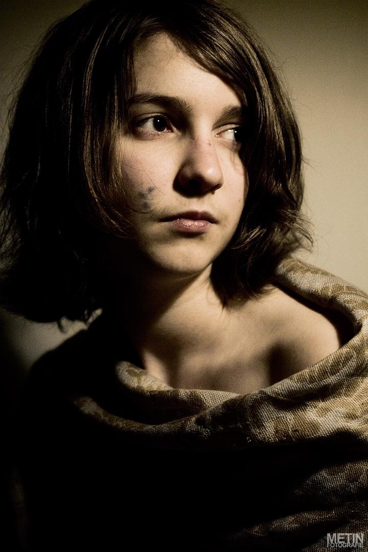 """Mijn Poolse vriendin Emilia heeft sinds haar geboorte 3 vlekken op haar gezicht. In Polen noemen ze het """"znamię"""" wat """"vlek/teken"""" betekend. Bij een navraag kwam ik uit op café au lait of het kan ook Naevus van Becker zijn. Het is nu nog onduidelijk."""