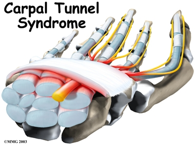 carpal tunnel machine