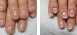 Métodos para dejar de comerte las uñas