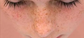 Formas naturales de remover manchas de la cara