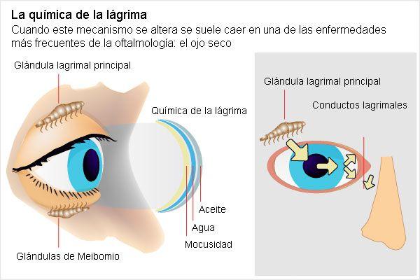 Las víctimas de las operaciones de la vista con láser   Blog Miguel ...