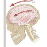 Concussions in Sports: Part 1 – Risk and Recovery Process