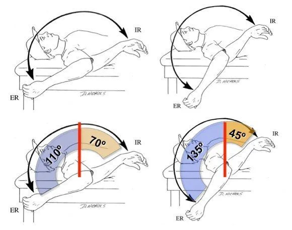 GIRD glenohumeral internal rotation deficit