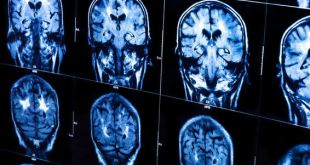 130218-brain