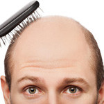 5 Hair Loss Supplements For Balding Men