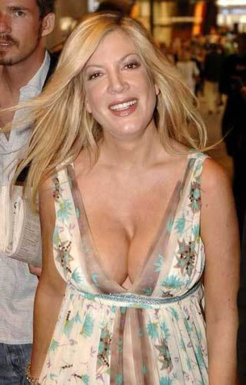 Plastic Surgery Gone Wrong Tori Spelling