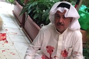 """""""كويتي"""" يحتفل بسقوط مرشحين بمجلس الأمة بذبح خرفان وناشطة تصفه بالمعتوه!"""