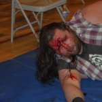 Moondog Manson bleeding after the chairshot