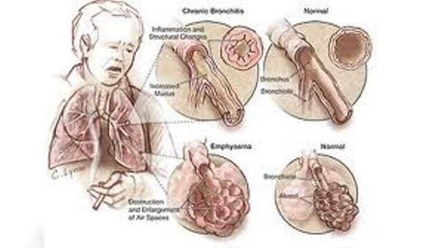 Cystic Fibrosis Disease