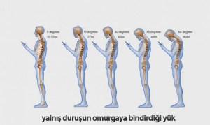 Yanlış duruşun omurgaya zararı