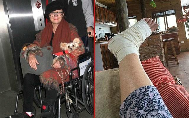 susan sarandon health wheelchair foot