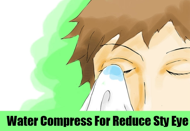 how to get rid of n eye sty