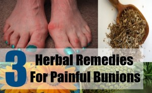 3 Herbal Remedies For Painful Bunions