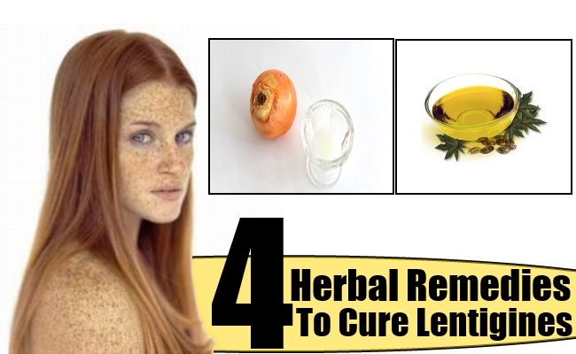 how to get rid of lentigines naturally