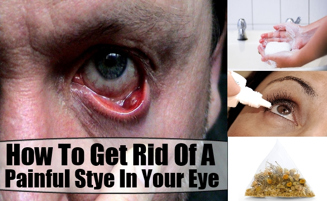 Home Remedies To Cure A Stye In Your Eye
