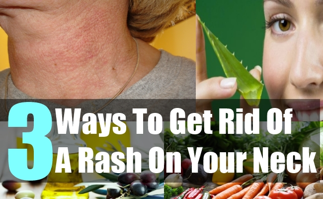 3 Ways To Get Rid Of A Rash On Your Neck