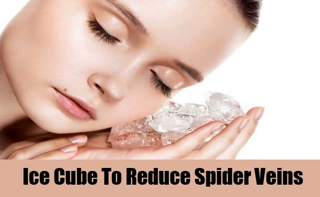 Natural Remedies For Spider Veins On Nose