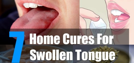 7 Home cures for swollen tongue