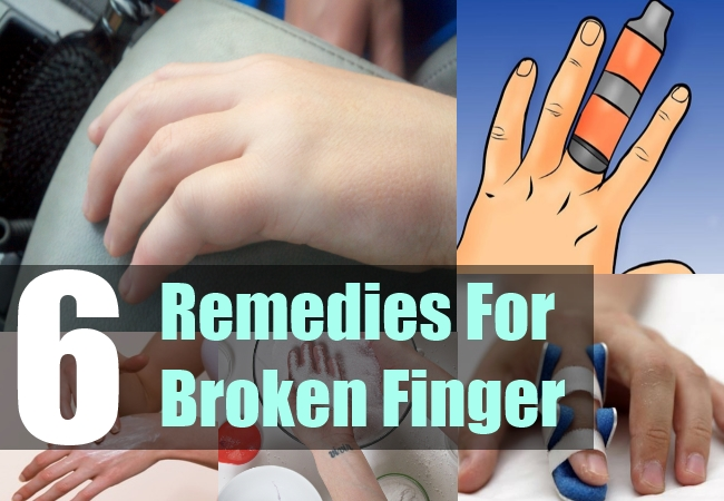 6 Remedies For Broken Finger