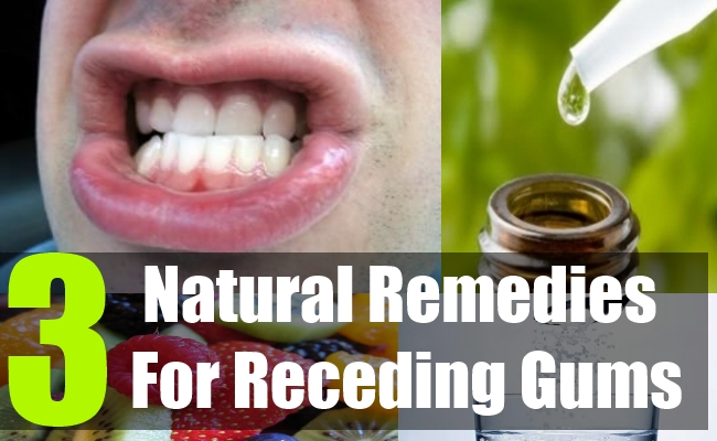 Natural Home Remedies For Receding Hairline