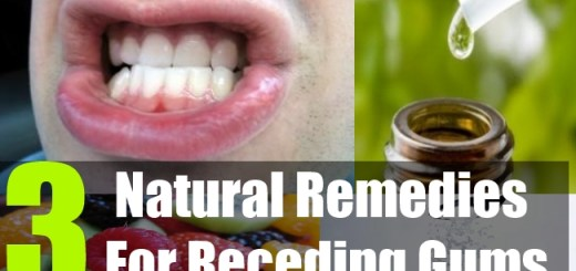 3 Natural Remedies For Receding Gums
