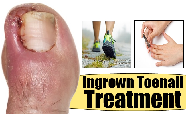 ingrown toenail- symptoms