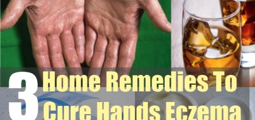 3 Home Remedies To Cure Hands Eczema