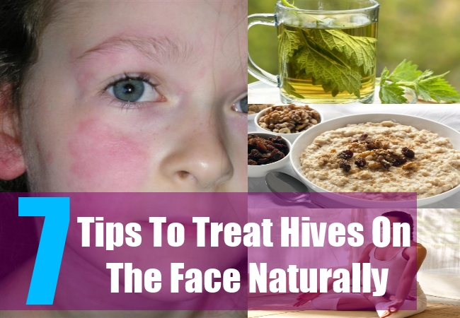 How to treat skin hive naturally – Causes and natural home treatment for skin hives