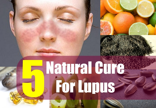 5 Natural Cure For Lupus