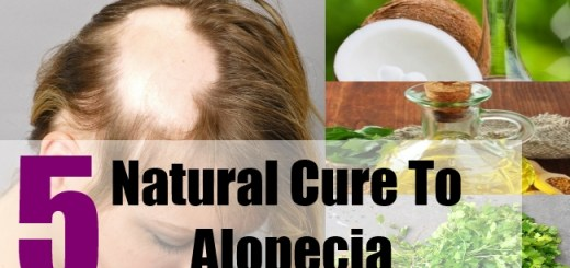 5 Natural Cure To Alopecia