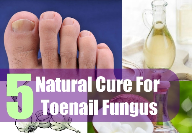 5 Natural Cure For Toenail Fungus