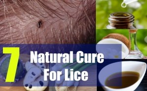 7 Natural Cure For Lice