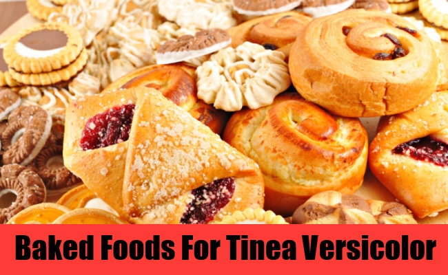 Baked Foods For Tinea Versicolor