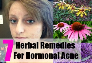 7 Herbal Remedies For Hormonal Acne