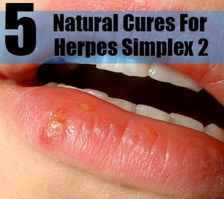 5 Natural Cures For Herpes Simplex 2