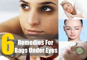 6 Remedies For Bags Under Eyes