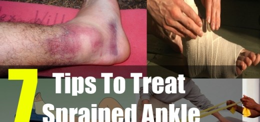 7 Tips To Treat Sprained Ankle
