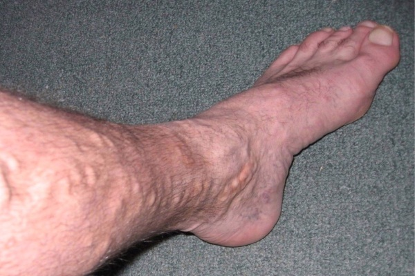 7 Home Remedies For Varicose Veins