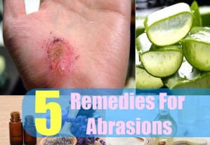 5 Remedies For Abrasions