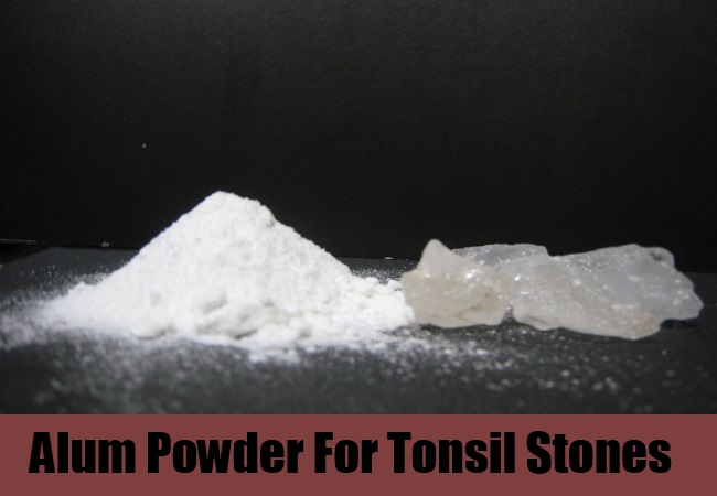 how to get rid of tonsil infection naturally