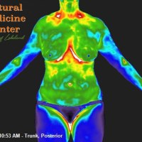 Thermography Post Food Allergy Detection Correcting Diet Thermographic Image Holistic Healthcare Natural Medicine Center Lakeland Central Florida