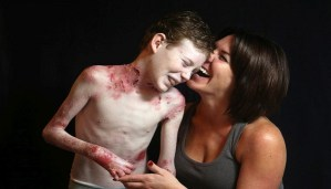 Painful Story Of A Little Boy Whose Skin Falls Away Even In The Smallest Touch